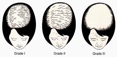 女性型脱毛症のルートヴィヒ分類
