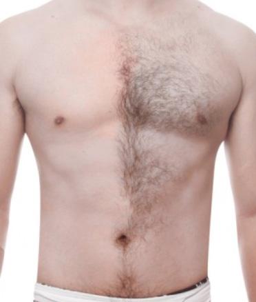 男性脱毛イメージ