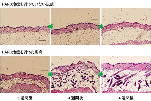 HARG皮下浸透組織図
