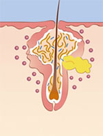 毛穴から原因部位に浸透して効果を発揮する。