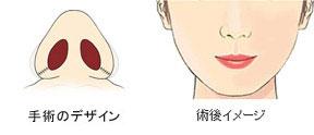 小鼻縮小術図