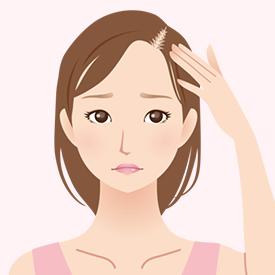 薄毛治療(女性)