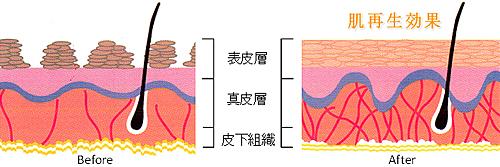 肌細胞再生のメカニズム
